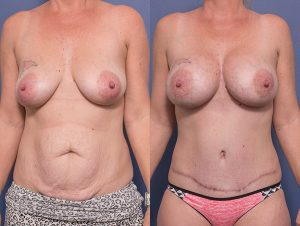 mummy makeover 006 - tummy tuck and bilateral breast augmentation