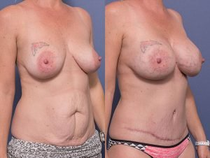 mummy makeover before and after 005 - tummy tuck and bilateral breast augmentation - 45 degree view