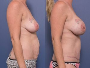 mummy makeover before and after 004 - side view - abdominoplasty and bilateral breast augmentation – 300cc anatomical implants – dual plane placement