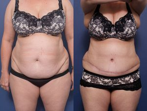 tummy tuck before and afters gallery - patient 11A - front view