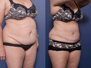 tummy tuck gallery - before and after - patient 11B - 45 degree view