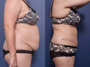 abdominoplasty before and after image - patient 11C - side view