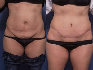 tummy tuck before and after gallery - patient 12A - front view