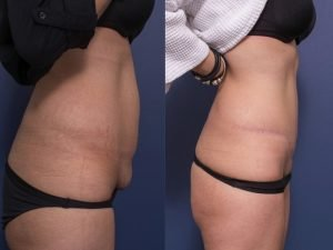 abdominoplasty before and after - patient 12B - side view