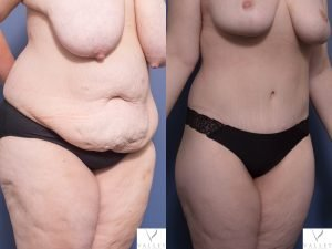 abdominoplasty - tummy tuck - image gallery - patient 1B - 45 degree view