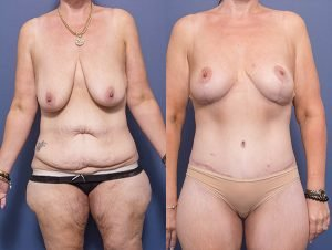 tummy tuck before and after - patient 002A - patient also had bilateral breast lift and back lipectomy - front view