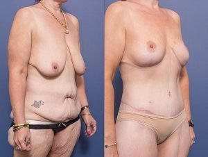 abdominoplasty before and after - patient 002B - patient also had bilateral breast lift and back lipectomy