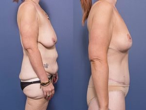 tummy tuck before and after - patient also had bilateral breast lift and back lipectomy
