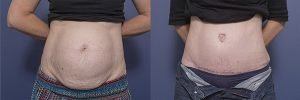 patient 4A - tummy tuck before and after - front view
