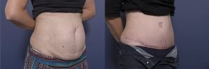 tummy tuck surgery - image gallery - patient 4B - 45 degree view