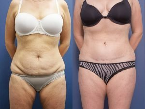 tummy tuck plastic surgery - patient 5A - before & afters - front