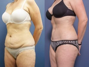 abdominoplasty - tummy tuck - image gallery - patient 5B - 45 degree view