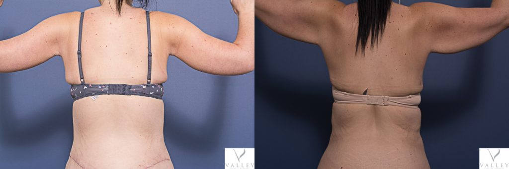 arm lift before and after - patient 1A - Bilateral brachioplasty and belt lipectomy, 3 months post - back view