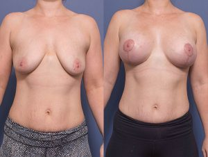 breast augmentation patient 010 - before & afters - front view