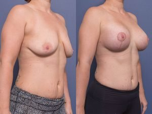 breast augmentation (and lift) before and after - patient 010 - 45 degree view