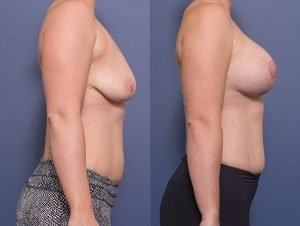 breast augmentation and lift - before & afters - patient 010 - side view