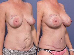 mummy makeover before and after 013 - tummy tuck and breast implants - 45 degree view