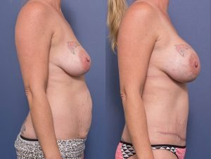 mummy makeover gallery - abdominoplasty & bilateral breast augmentation 300cc anatomical implants – dual plane placement