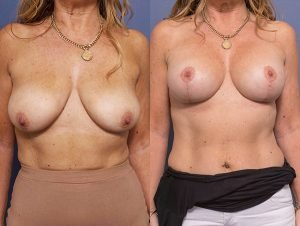 breast augmentation mastopexy before and after - image 003 - patient 012 - front view