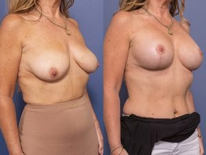 breast lift and implants - before and after - image 002 - patient 012 - 45 degree view