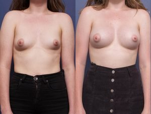 breast implants before and after - image 003 - patient 013 - front view