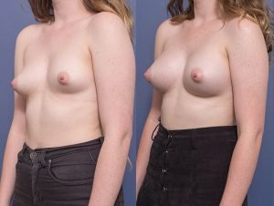 breast augmentation before and after - image 002 - patient 013 - 45 degree view