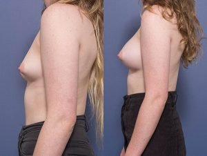 breast augmentation surgery before and after - image 001 - patient 013 - side view