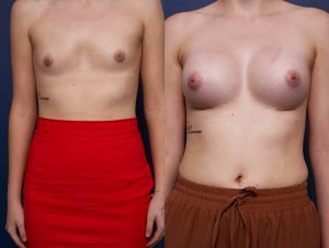 breast implants gallery - before and after - image 003 - patient 014 - side view