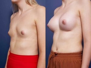 breast implants before and after - image 002 - patient 014 - 45 degree view