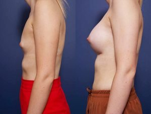 breast augmentation gallery - before and after - image 001 - patient 014 - side view