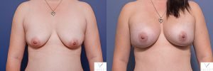 breast augmentation - before and afters - image 003 - patient 015 - front view