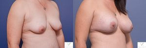 breast augmentation surgery before and after - image 002 - patient 015 - 45 degree view