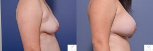 breast augmentation surgery before and after - image 001 - patient 015 - side view