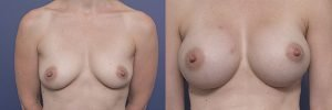 breast implants before and after surgery - patient 002A - front view