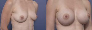 boob job with round implants - before and after - patient 002B