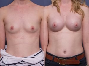 breast implants before and after - round implants - patient 004A - front view