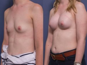 breast augmentation surgery - before and after - patient 004B - 45 degree view