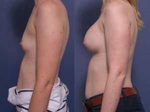 bilateral breast augmentation - gallery - patient 004C