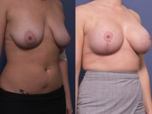 breast augmentation - before and after gallery - patient 005B - 45 degree view