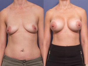 breast augmentation with anatomical implants - before and after - patient 007A