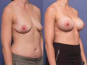 before and after breast augmentation - patient 007B - 45 degree view