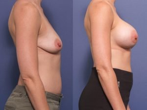 breast augmentation - dual plane placement - before and after - patient 007C