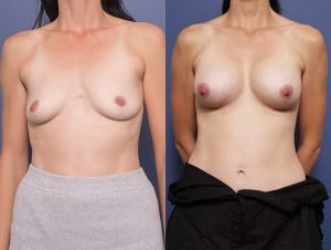 breast augmentation gallery - before and after - patient 008A