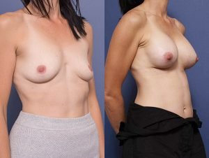 breast implants before and after gallery - patient 008B