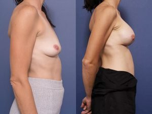breast augmentation (subpectoral placement) - before and after gallery - patient 008C