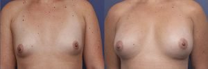 breast augmentation - anatomical implants - before and after - patient 009A