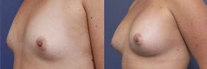 oblique breast augmentation before and after gallery - patient 009