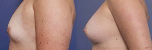 breast augmentation with anatomical implants - patient 009 - side view