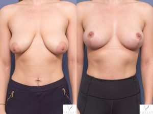 breast lift - patient 001A - before and after image - front view