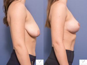 bilateral breast lift before & after images - patient 001C - side view